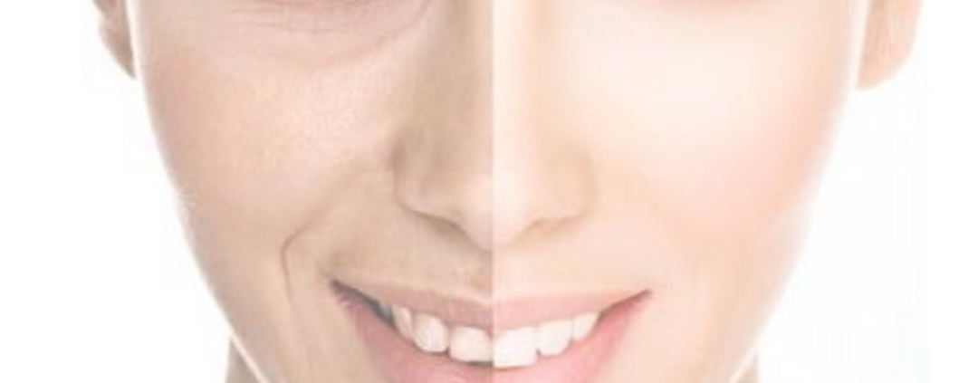 MedSpa Ibiza: Chemical Peelings