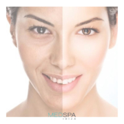 MedSpa Ibiza: Medical Facials